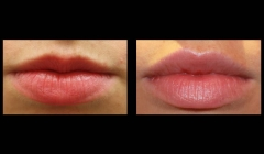 lips-enhancement-nyc