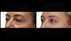 lower lid blepharoplasty-brooklyn