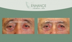 Lower-Lid-Blepharoplasty-10