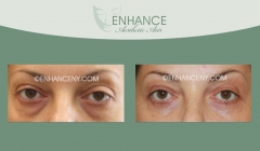 Lower-Lid-Blepharoplasty-11