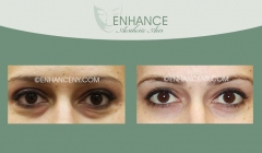 Lower-Lid-Blepharoplasty-12