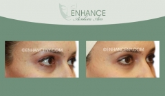 Lower-Lid-Blepharoplasty-13