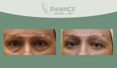 Lower-Lid-Blepharoplasty-2