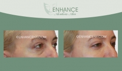 Lower-Lid-Blepharoplasty-3