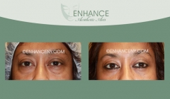 Lower-Lid-Blepharoplasty-4