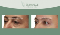Lower-Lid-Blepharoplasty-5