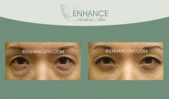Lower-Lid-Blepharoplasty-6