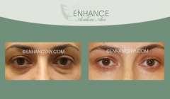 Lower-Lid-Blepharoplasty-7