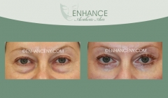Lower-Lid-Blepharoplasty-8
