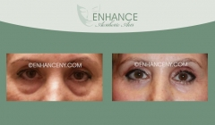 Lower-Lid-Blepharoplasty-9
