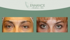 lower-lid-blepharoplasty-1