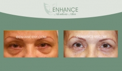 Upper-and-Lower-Lid-Blepharoplasty-1