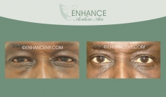 Upper-and-Lower-Lid-Blepharoplasty-11