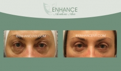 Upper-and-Lower-Lid-Blepharoplasty-2