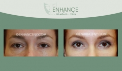 Upper-and-Lower-Lid-Blepharoplasty-3