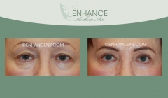 Upper-and-Lower-Lid-Blepharoplasty-4