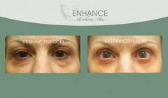Upper-and-Lower-Lid-Blepharoplasty-5