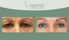 Upper-and-Lower-Lid-Blepharoplasty-6