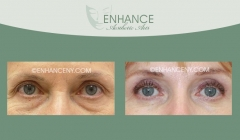 Upper-and-Lower-Lid-Blepharoplasty-7