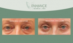 Upper-and-Lower-Lid-Blepharoplasty-8