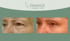 Upper-and-Lower-Lid-Blepharoplasty-9