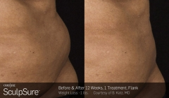 sculpsure-before-after-brooklyn-1