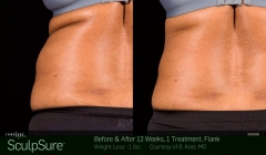 sculpsure-before-after-brooklyn-10