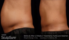 sculpsure-before-after-brooklyn-7