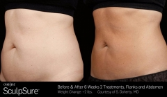 sculpsure-before-after-brooklyn-8