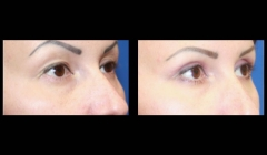 eyelid-correction-nyc