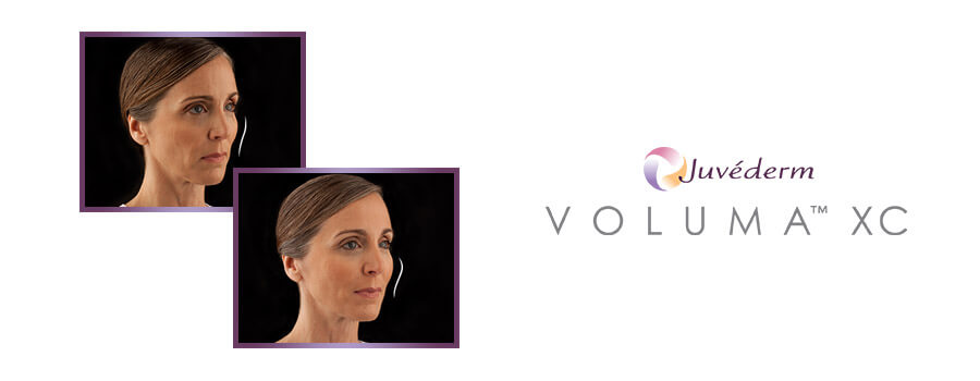 Juvederm Voluma Blog Featured Image
