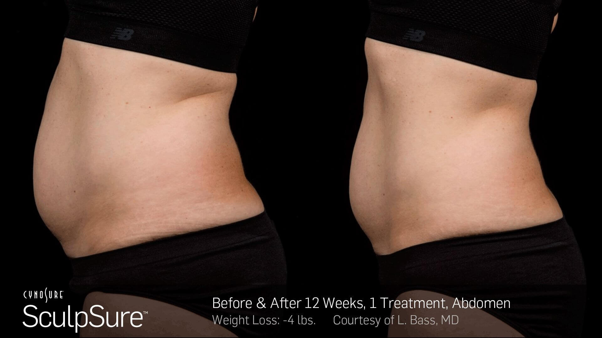 Sculpsure before after Brooklyn