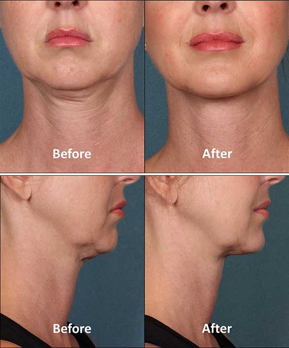 Kybella Brooklyn Before After