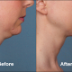 Kybella Patient PRI1 Before After (Side View)
