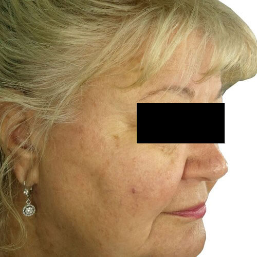 Skin Rejuvenation 1 After