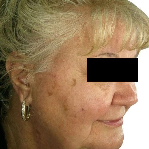 Skin Rejuvenation 1 Before