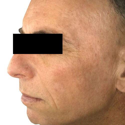 Skin Rejuvenation 2 After