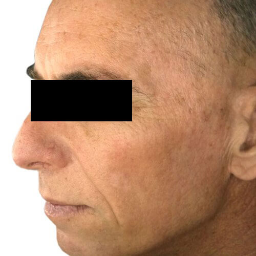 Skin Rejuvenation 2 Before